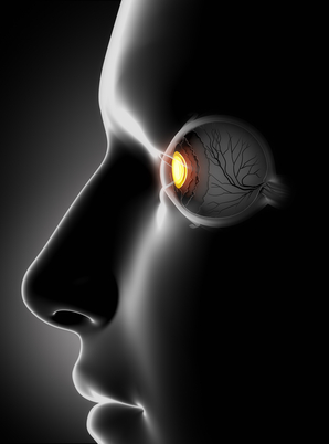 optical migraine treatment