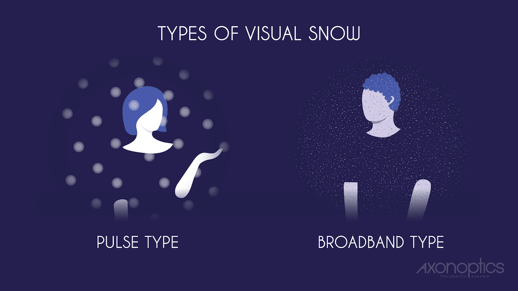 Types of Visual Snow - Pulse vs Broadband