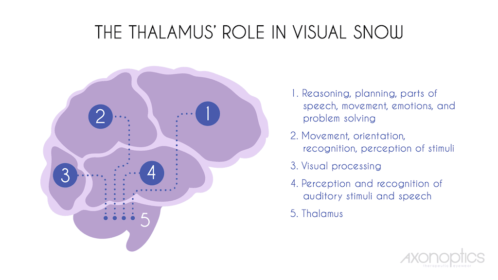 Visual Snow and the Thalmus