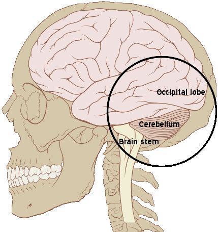 base of brain where basilar migraines originate