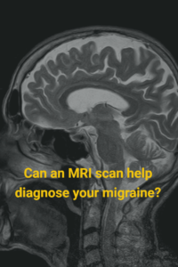 Image of MRI asking if an MRI can help diagnose migraine.